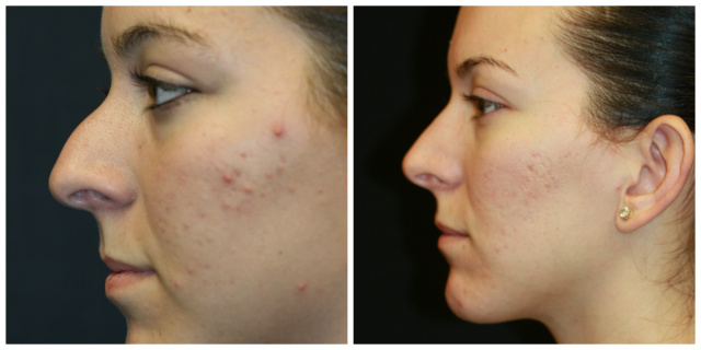 West Palm Beach Nose Surgery - Before and After Rhinoplasty West Palm Beach