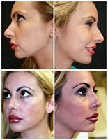 Rhinoplasty West Palm Beach - Before and After West Palm Beach Nose Surgery